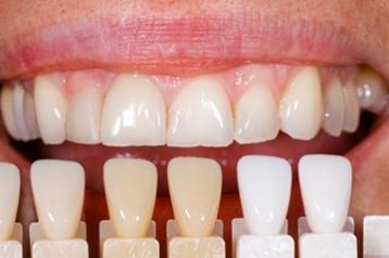 Zahnzusatzversicherung fur sofort notige zahnersatz